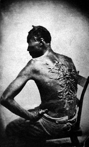 362px-Cicatrices_de_flagellation_sur_un_esclave